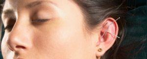 Akupunktur -Therapie mit Energie